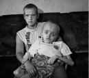 Effetti del distrastro di Chernobyl