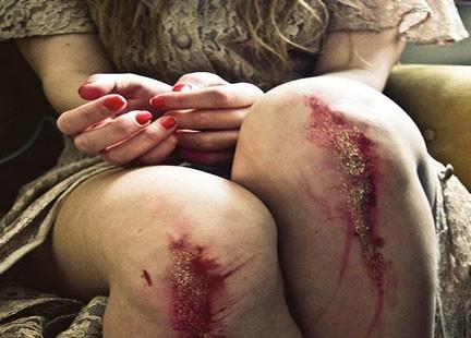 ginocchia ferite