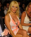 Pamela Anderson dopo il Lifting!