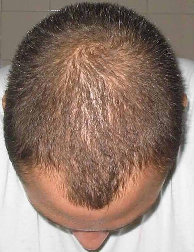 Diradamento capelli uomo